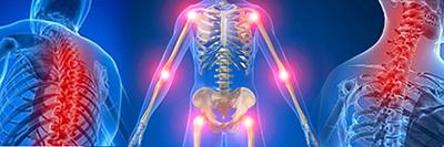 Mold Misdiagnosed: Fibromyalgia
