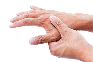 Mold  Misdiagnosed: Rheumatoid Arthriti